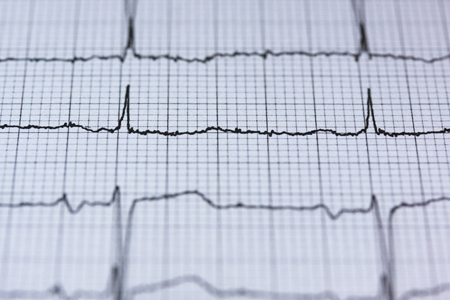 EKG-Geraet